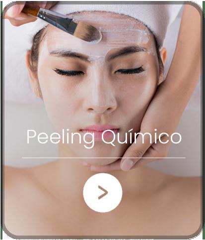 peeling-quimico-home-01-11