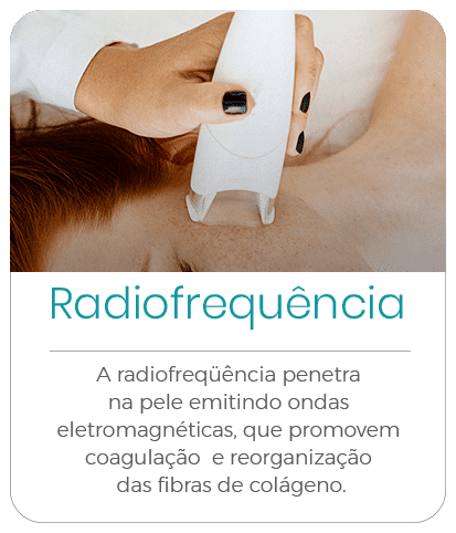 radiofrequencia-hover