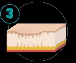 subcisão para acne