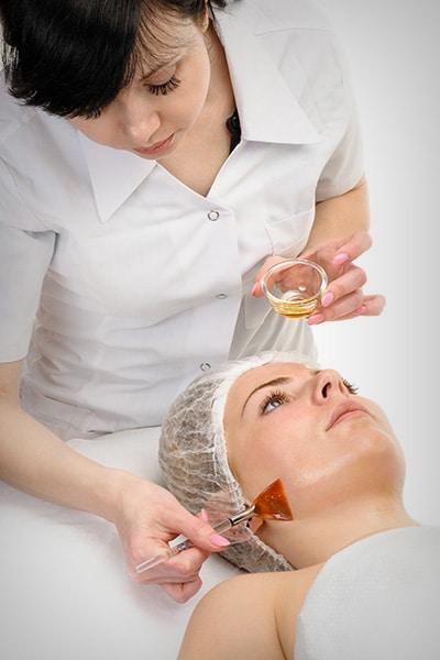tratamento-com-peeling-quimico